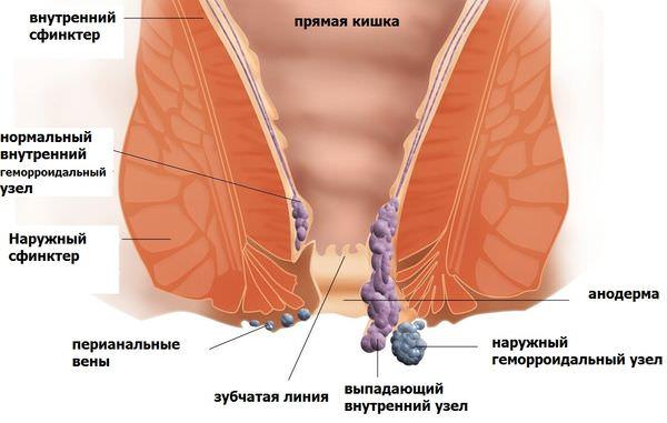 Причины и признаки геморроя у женщин обзор методов лечения