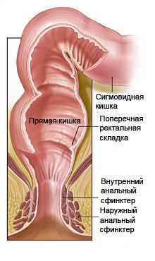 Складки на анусе фото